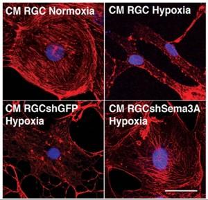 2.1.1 ischemic neurons